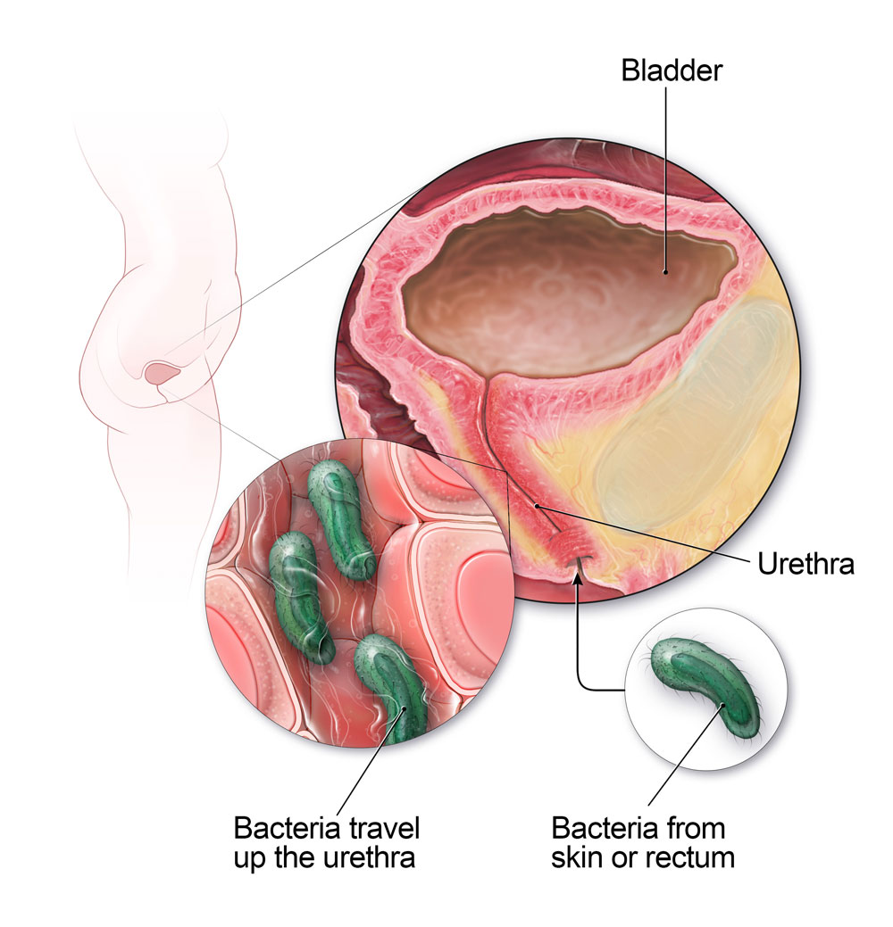 Does sex cause bladder infections