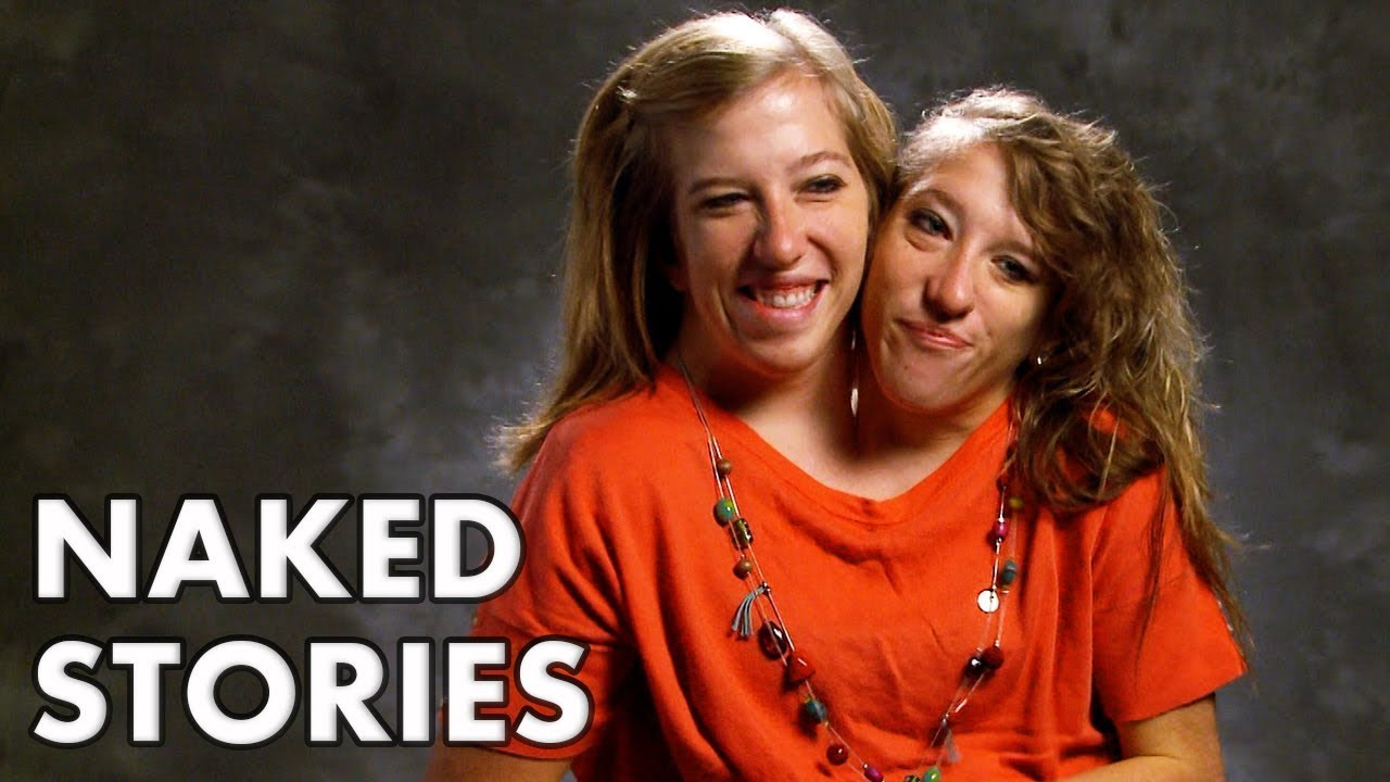 Pictures of naked hs teen conjoined twins pictures